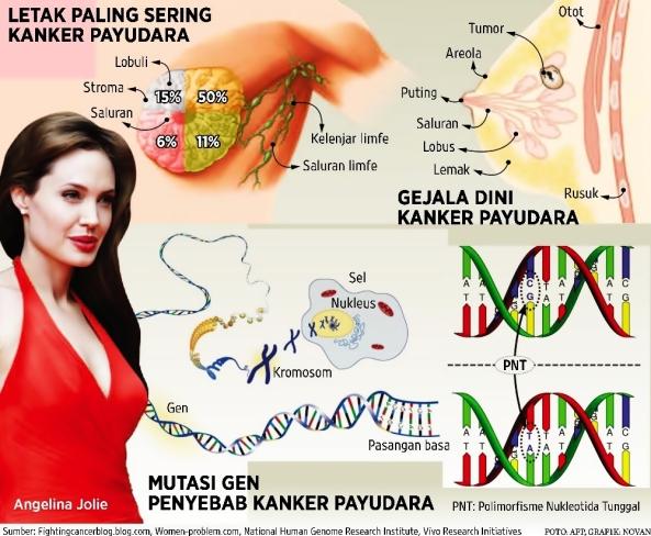 Angelina Jolie dan Mastektomi