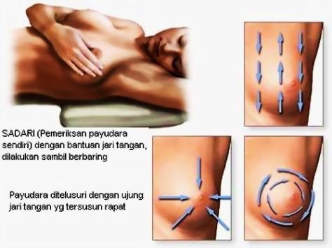 gangguan-payudara-kanker-payudara-gbr-3-breast_exams3