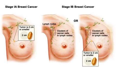 tumor-payudara Stage IA