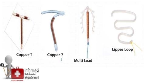 Jenis-Jenis-Alat-Kontrasepsi-Dan-Fungsinya-6
