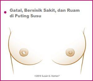 Ciri-Ciri-Kanker-Payudara-Gatal-Bersisik-Ruam