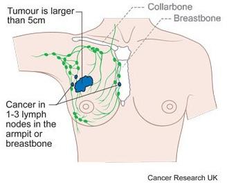 kanker-payudara-stadium-3a-2
