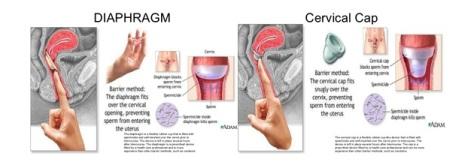 Diafragma-cervical-cap-bundanet