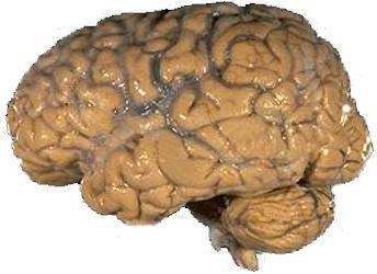 Human_brain_NIH