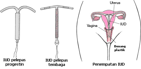 Intrauterine Devices IUD