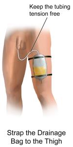 Foley_Catheter_Drainage