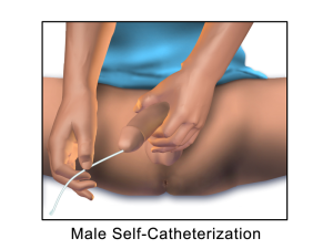 Male_Self-Catheterization