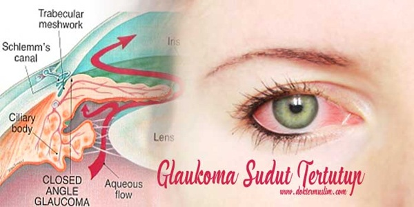 glaukoma-sudut-tertutup-doktermuslim