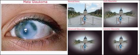 Pandangan-Mata-Glaukoma-copy-600X236